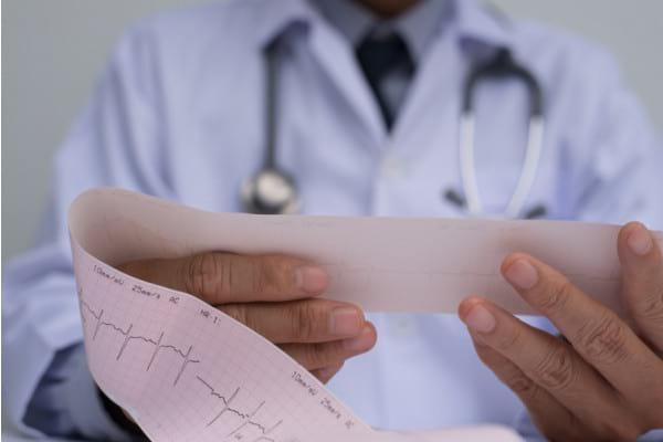 Ce arata un ECG / EKG si de ce trebuie sa iti monitorizezi ECG-ul